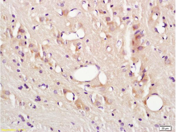 Polyclonal Antibody